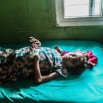 Young girl suffering from ascites after receiving her treatment