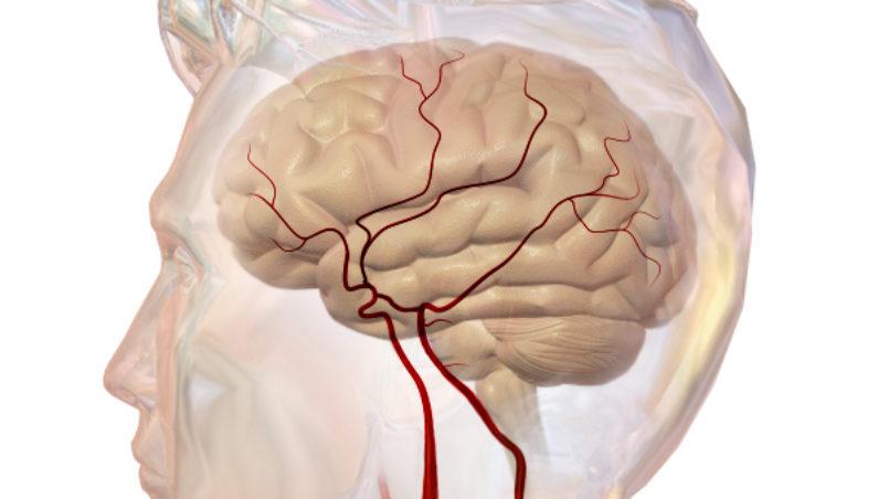 Cerebrovascular_System-